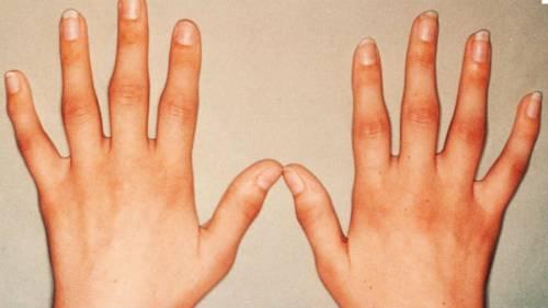 a kezek falának ízületei deformáló artrózisa térd osteoarthrosis kezelése 2. szakasz