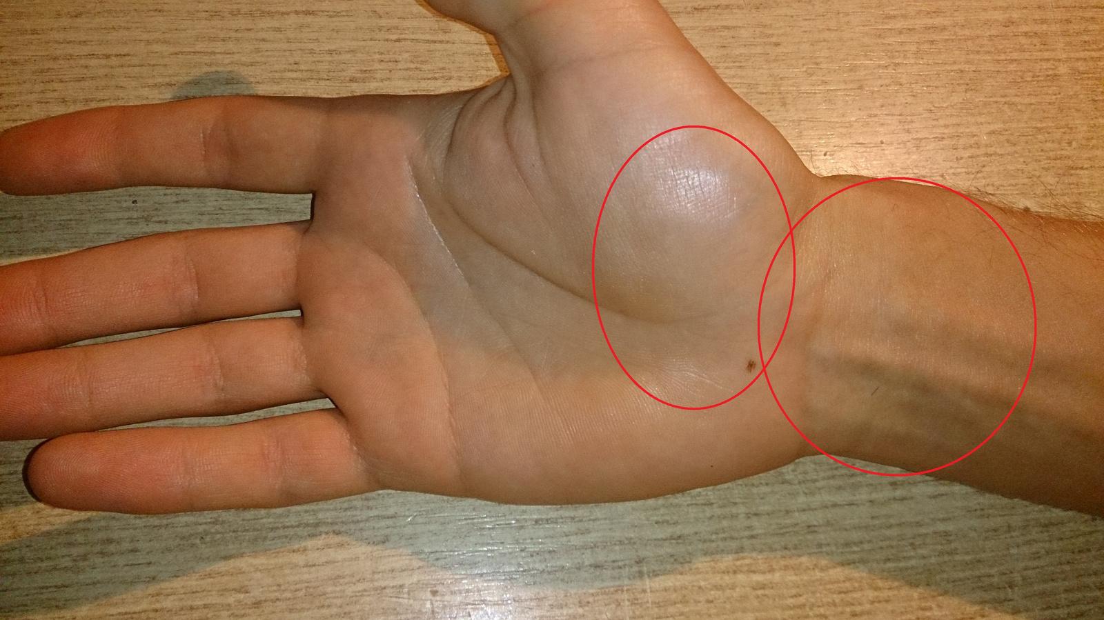 a kéz minden ízülete fáj, mi az)