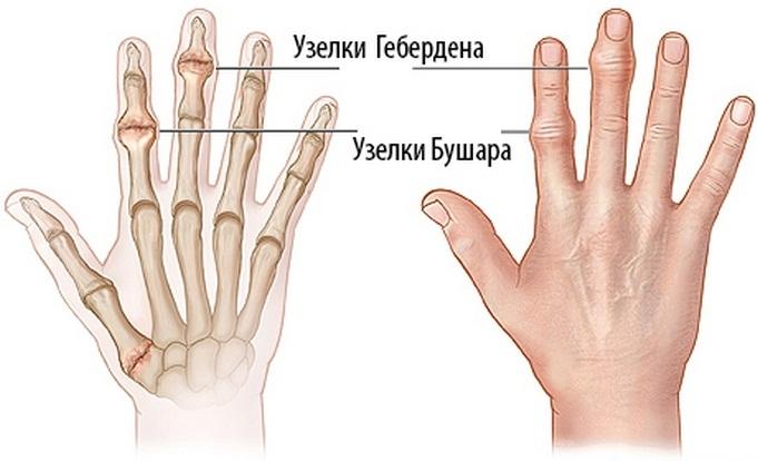kezelni az ujjak ízületeinek gyulladását