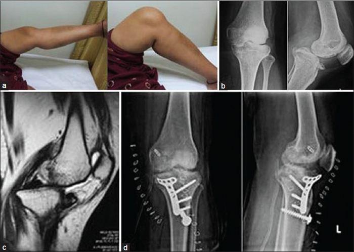 a láb kicsi ízületeinek ízületi tünetei