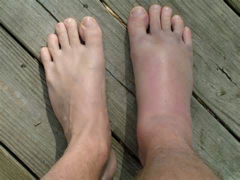 a láb metatarsalis osteoarthritisének kezelése térd pusztító ízületi gyulladása