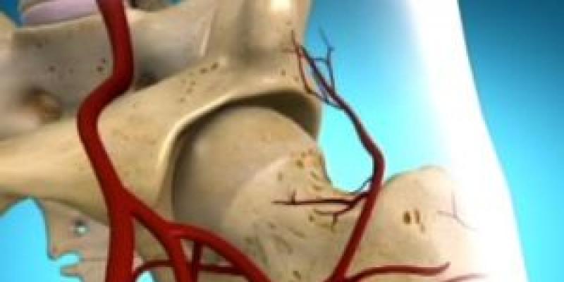 a lábkezelő gyógyszerek deformáló artrózisa