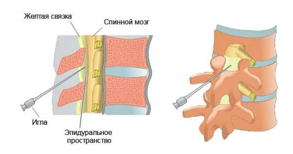 A nyaki osteochondrosis tabletták áttekintése