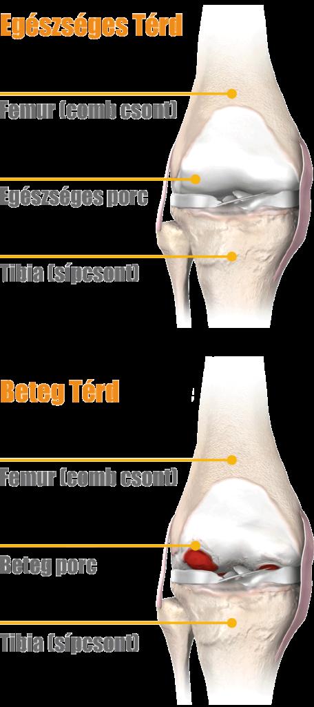 a térd artrózisának kezelésének kezdeti stádiuma