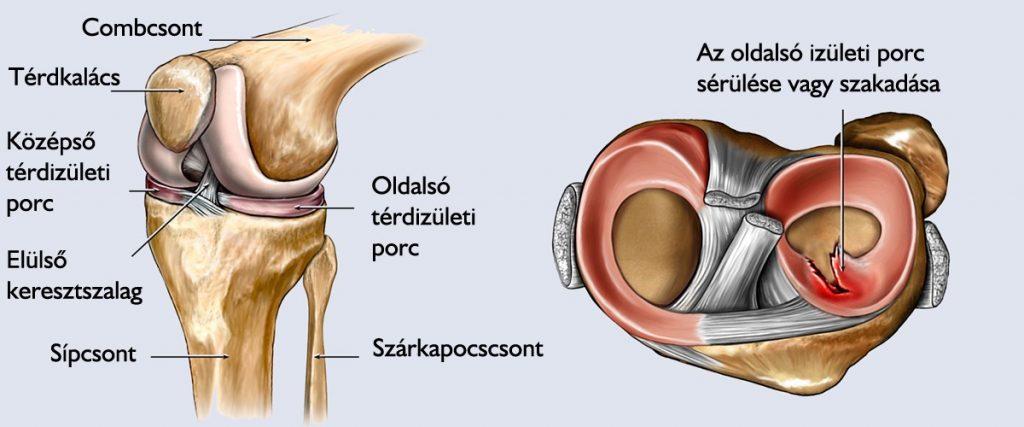 Az oldalsó (külső) meniszkusz hátsó kürt törése kezelése - Dongaláb