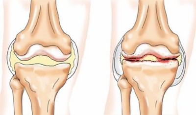 a térdízület kezelési fokának deformáló artrózisa)