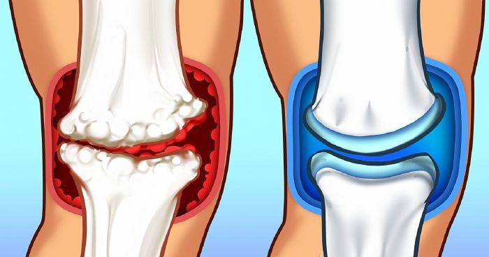 a térdízület ízületi gyulladása okozza)