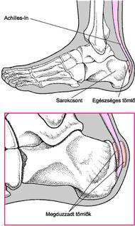 éles fájdalom a lábujjak ízületeiben
