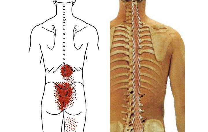 kenőcs a mellkasi gerinc osteokondrozisához artrózis kezelése időskorúaknál