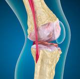 a térd belső meniszkuszának krónikus károsodása vállízület és légszomj
