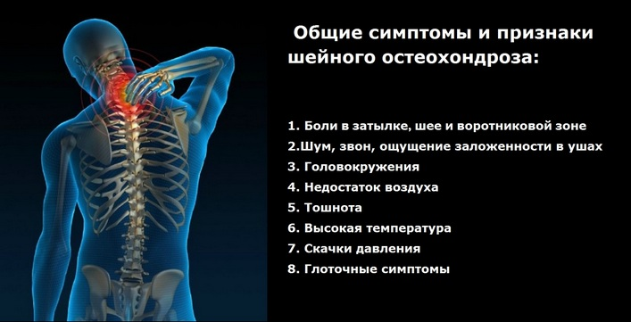 Cervicalis osteochondrosis lemezkiemeléssel