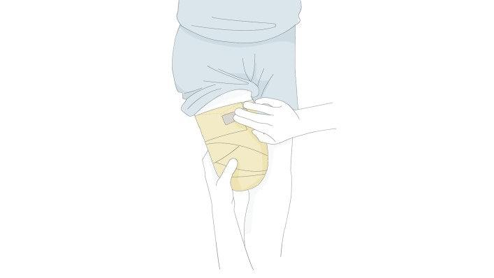 mi a teendő a térdízületek fájdalmától gyulladásgátló kenőcsök az ujjak ízületeire