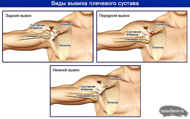 amely segít a vállízület fájdalmában)