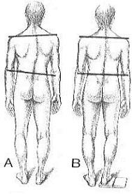 csípőmozgás kezelése