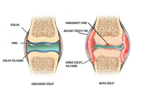 bursitis a térdízület kezelésénél)