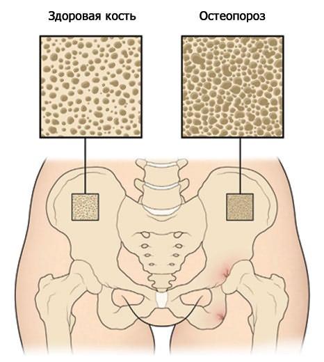 ami a csípőízület artrózisát jelenti)