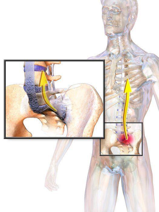 ankylosing spondylitis ízületi fájdalom