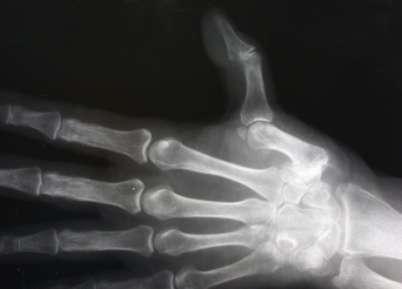 arthrosis klinikai kezelés)