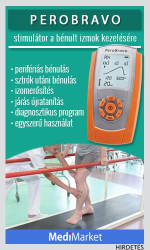 artrózis kezelése ivanovo-ban)
