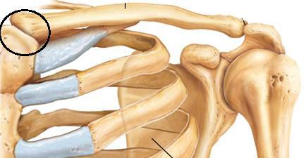 ízületi kezelés a vállakban zselatin artrózis és ízületi gyulladás kezelésére