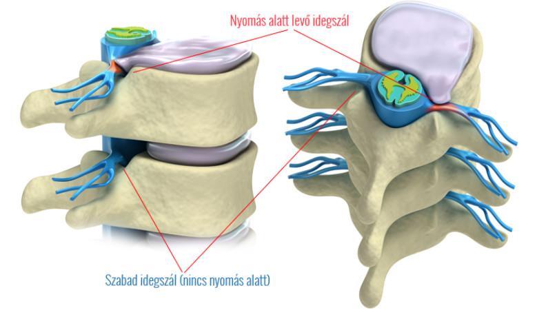 az ágyéki artrózis kezelése)