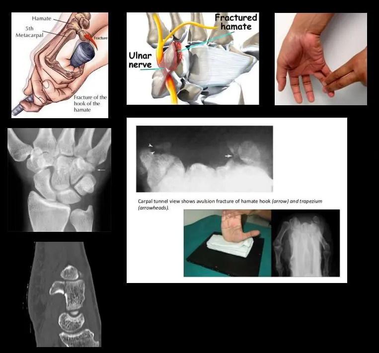 az ismeretlen ízületek ízületi gyulladása mamahuana recept ízületi fájdalmak esetén