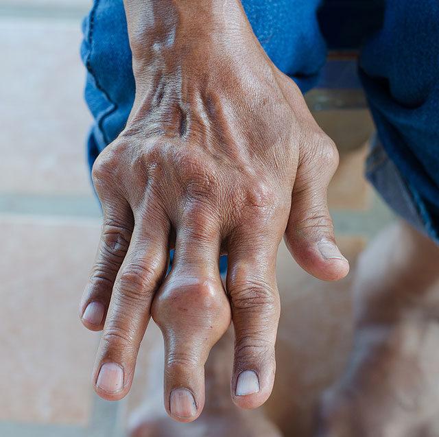 az ujj ízületén lévő dudor nem fáj)