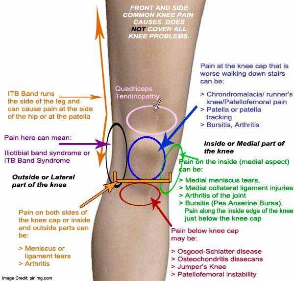 térdfájdalom ligamentum kezelése)