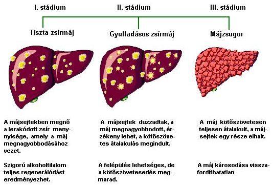 fáj a máj fej ízületei a térdízület synovitisának okai és kezelése