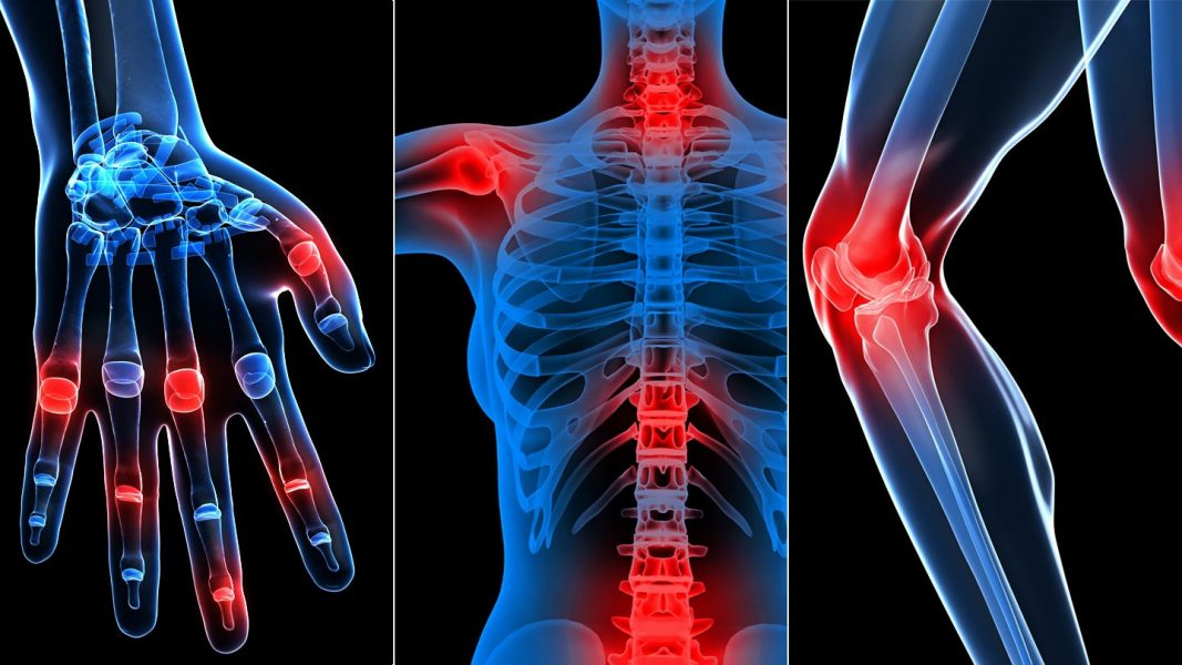 gyógyszerek a fejfájás és a kurpat osteochondrozisához hogyan kell kezelni a rheumatoid arthritis 2 evőkanál