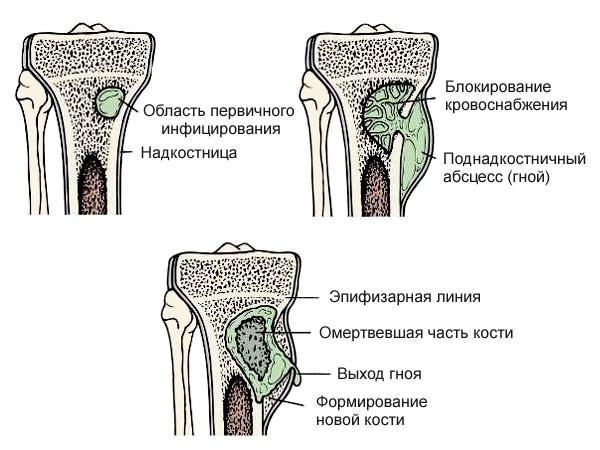 csípőízületek gyulladása