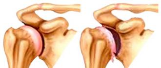 a vállízületek artrózisa 1 fok)