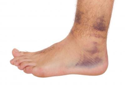 boka duzzanat és láb kezelés)