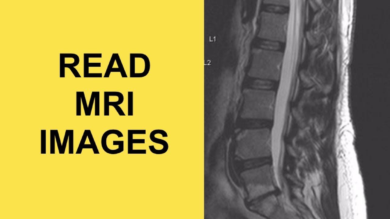 Kenőcs a voltaren nyaki osteochondrozisához, A nyaki gerinc izom-tonikus szindrómájának tünetei