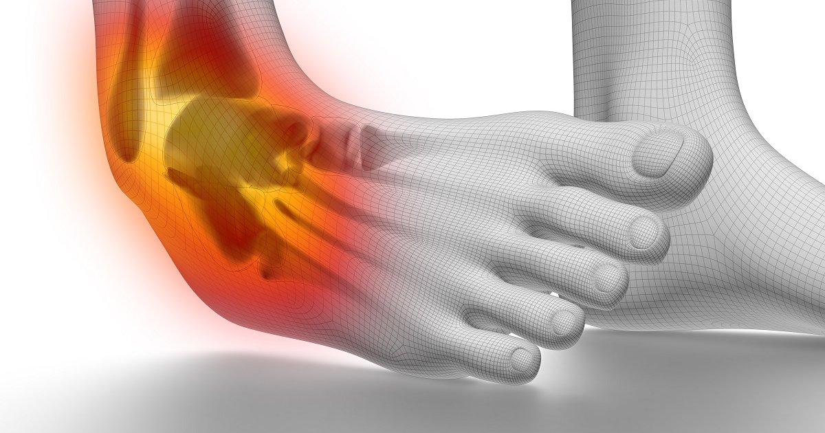 boka fájdalom járás fájdalom