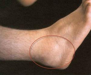 bokaízület deformációs ízületi gyulladása)
