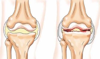 a térdízület kezelési fokának deformáló artrózisa