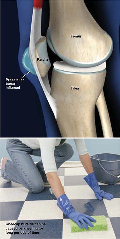 Borjú fájdalom: okai, kezelése, és mikor látni kell egy orvost - Ortopédia - 2020