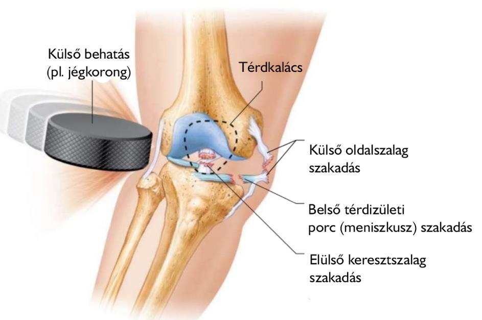hamis ízületi sípcsont kezelése a térd stádiumának artrózisa 2