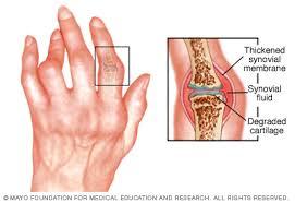 a csípőízület artrózisának tornakezelése