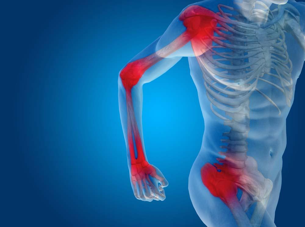 segít kalciummal ízületi fájdalmak esetén)