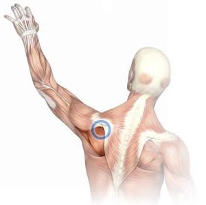 artrózis sókezelés áttekintése