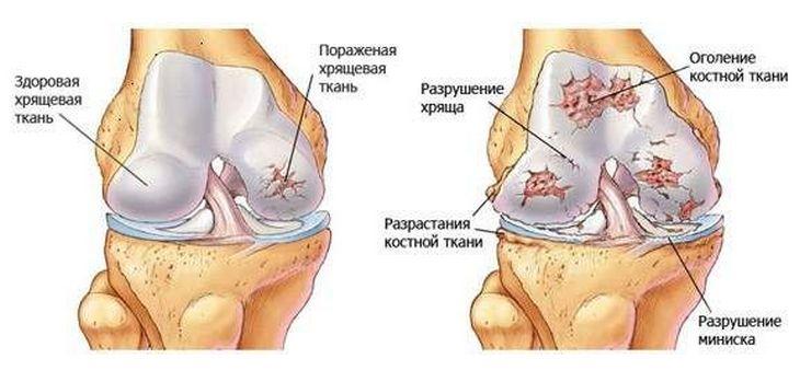 porcok, amelyek helyreállítják a porcszöveti csontritkulást