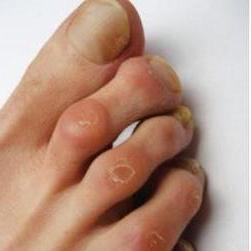a nagy lábujj második ízületének gyulladása)