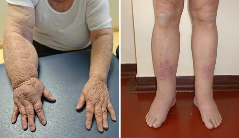 a lábak karjainak ízületei fájnak és duzzadnak)