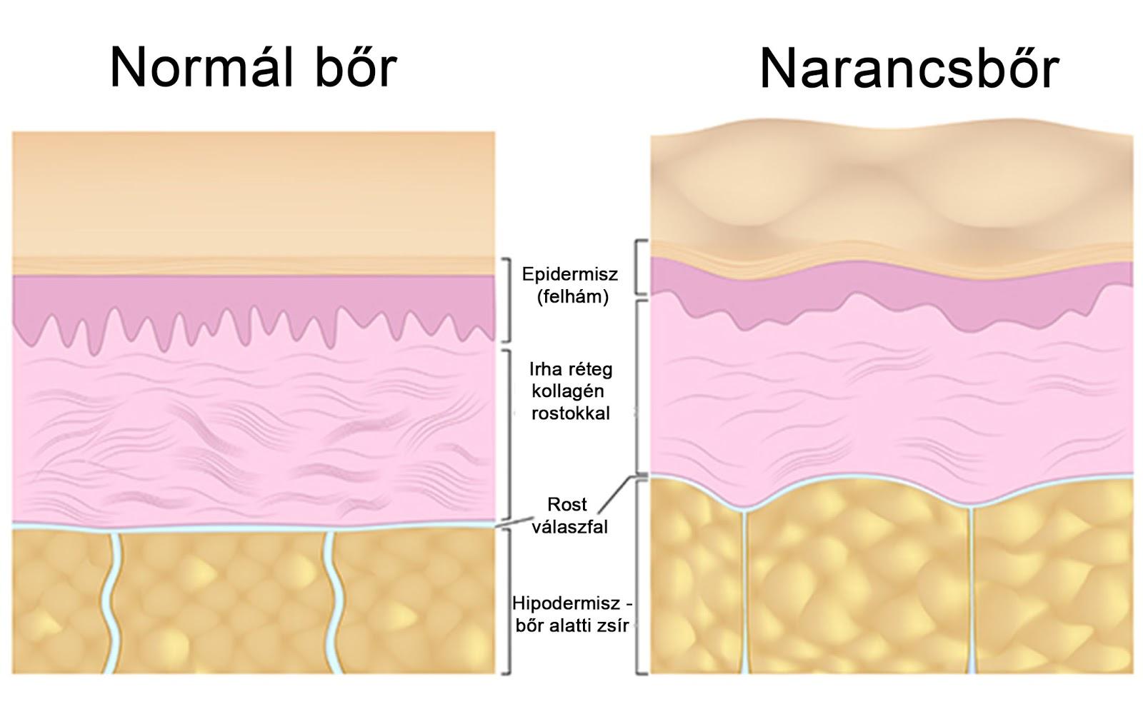 kötőszöveti gyulladás cellulit