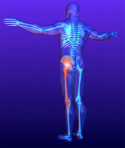 csípőízület neuralgikus fájdalma)
