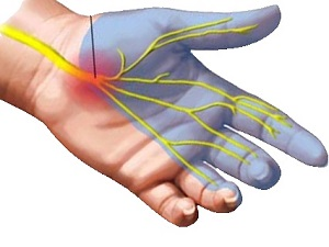 a jobb kéz ízülete fáj, és az ujjak zsibbadnak