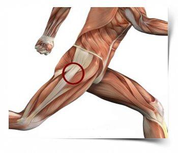 остеоартроз классификация térdfájdalom egy régi sérülés után