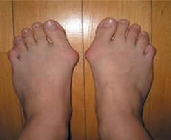 lábujjak artrózisos kezelése aggódik a könyökízület fájdalma miatt